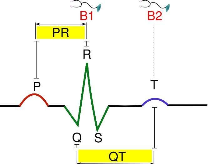 Figure 7. Activité électrique du cœur humain. L'électrocardiogramme normal chez l'homme. P : contraction des oreillettes ; QRS : contraction des ventricules ; T : relaxation des ventricules. Intervalle PQ : temps de conduction atrioventriculaire ; intervalle QT : durée de la contraction des ventricules. B1 et B2 correspondent au temps où l'on peut entendre les bruits du cœur à l'auscultation. © Hugues Jacobs