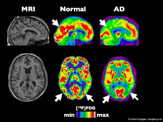 Pet Scan d'un cerveau en bonne santé et d'un cerveau atteint d'Alzheimer à un stade précoce. © Institut Douglas, flickr, cc by nc nd 2.0