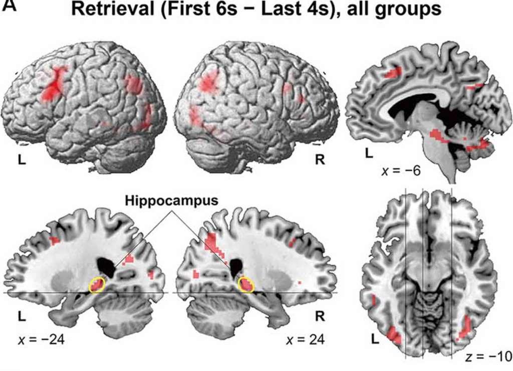 Les zones du cerveau activées chez tous les participants de l'étude pendant le processus de remémoration. © Keita Umejima et al. Frontiers in Behavorial Science