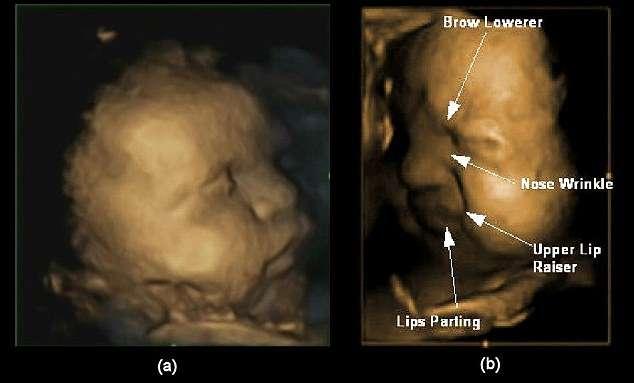 Images d'échographie 3D à 32 semaines de grossesse. (a) visage neutre non expressif ; (b) visage exprimant la douleur. Plusieurs mouvements interviennent : abaissement des sourcils, froncement du nez, soulèvement de la lèvre supérieure et ouverture de la bouche. © Université de Durham