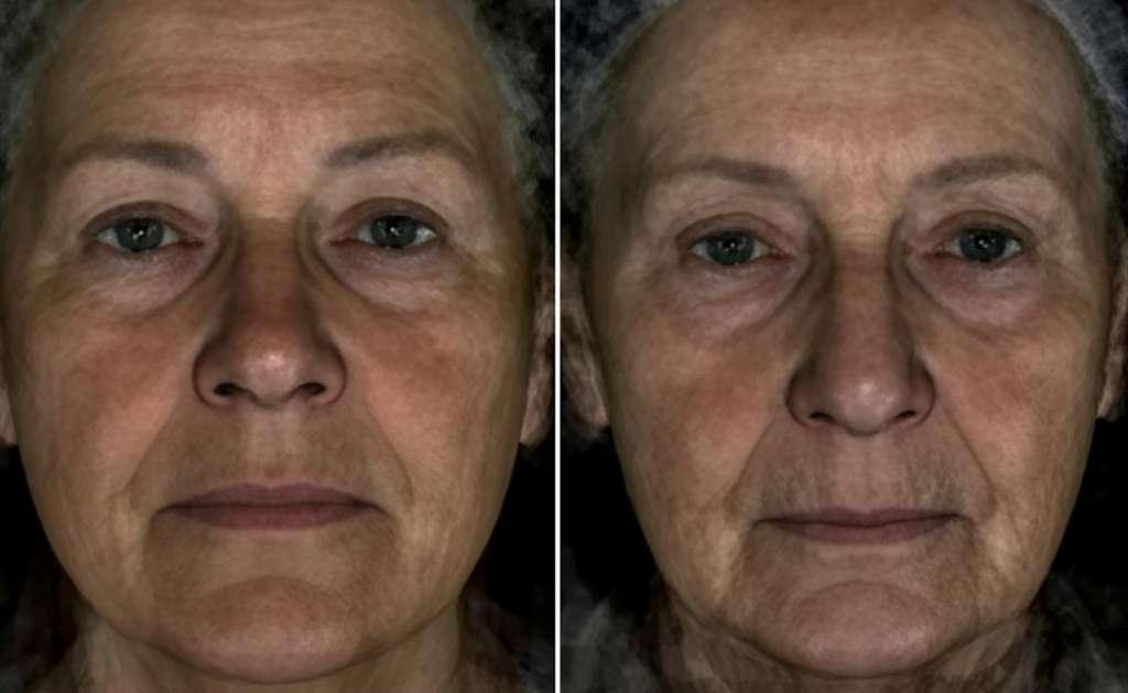 Ces deux visages ont la même surface couverte par les rides (5 %), mais la femme de gauche semble plus jeune. C'est cet effet indépendant des rides qui serait lié au gène MC1R. © Liu et al. 2016, Current Biology