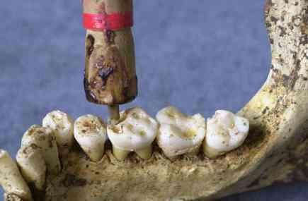 Reconstitution par les archéologues du travail d'une dent, comme pratiqué au néolithique (Crédits : Roberto Macchiarelli, Université de Poitiers)