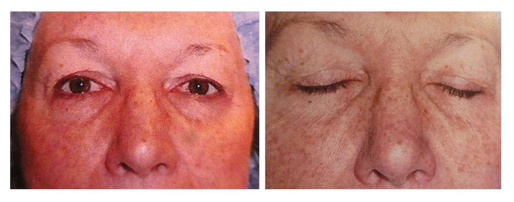 Patiente yeux ouverts et fermés avant l'opération. © Dr Mitz, tous droits réservés