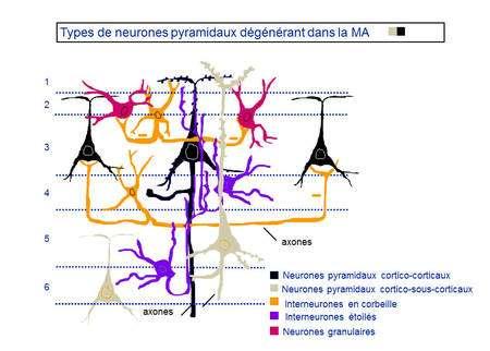 Les types de neurones pyramidaux dégénérant dans la maladie d'Alzheimer (MA) sont les cortico-corticaux et les cortico-sous-corticaux. © DR