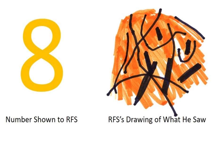 À gauche, le chiffre présenté au patient, à droite ce que le patient a dessiné en prenant le chiffre pour modèle. © Johns Hopkins University