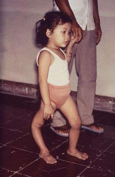 Cet enfant présente une amyotrophie du membre inférieur droit due à la poliomyélite. Malheureusement il n'existe pas de traitement curatif. La vaccination est un bon moyen de se protéger contre cette maladie. © CDC, Wikimedia Commons, DP