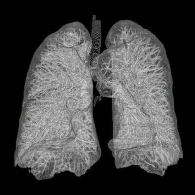 Les poumons sont composés, comme on le voit ici, d'un réseau de bronches. Dans le cas de l'asthme, l'air circule mal du fait d'une bronchoconstriction (réduction du diamètre des bronches) cumulée notamment à une sécrétion importante de mucus, qui réduit davantage le conduit. Les personnes en crise utilisent alors un inhalateur contenant du salbutamol, un bronchodilatateur. © AndreasHeinemann, Wikipédia, cc by sa 3.0