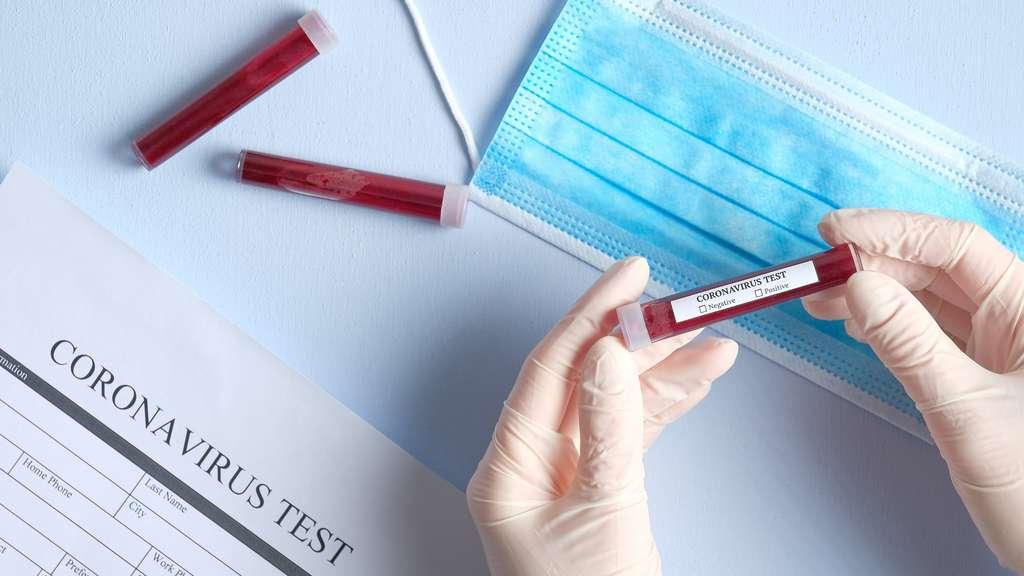 Les tests sérologiques peuvent être pratiqués par un professionnel de santé ou un pharmacien. © Photoguns, Adobe Stock