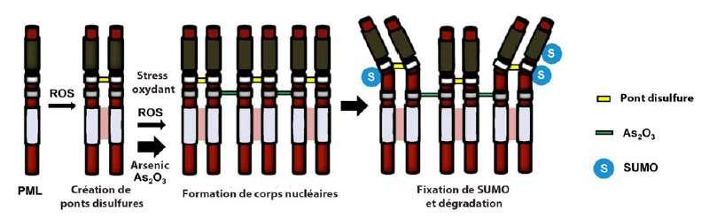 Modèle d'action de l'arsenic sur l'agrégation et la destruction des oncogènes PML/RARA dans le traitement de la leucémie aiguë promyélocytaire. Les ROS favorisent l'agrégation des PML/RARA, encore renforcée par la fixation de l'arsenic. Les corps nucléaires ainsi formés subissent des sumoylations (accrochage de protéines Sumo, Small Ubiquitin-like Modifier), puis une dégradation ciblée. © Inserm / CNRS / Cancer Cell