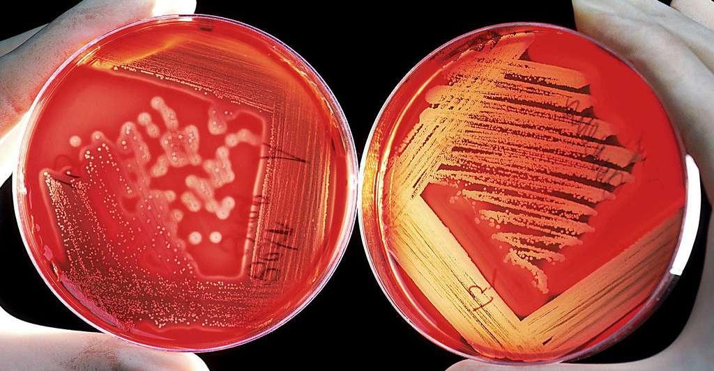 Cultures de Listeria monocytogenes sur un milieu nutritif. On peut retrouver cette bactérie dans le lait et les produits laitiers. © WikiImages, DP