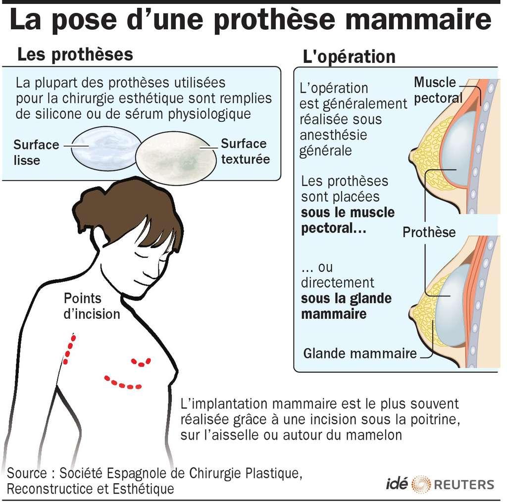 On estime à environ 500.000 le nombre de Françaises ayant subi une opération de chirurgie pour se faire poser un implant mammaire. Cette illustration explique les procédés utilisés. © Idé