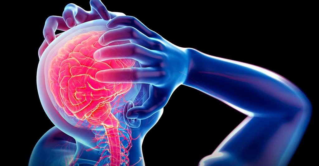 La migraine peut-elle être le signe d'un AVC ? © Sebastian Kaulitzki, Shutterstock