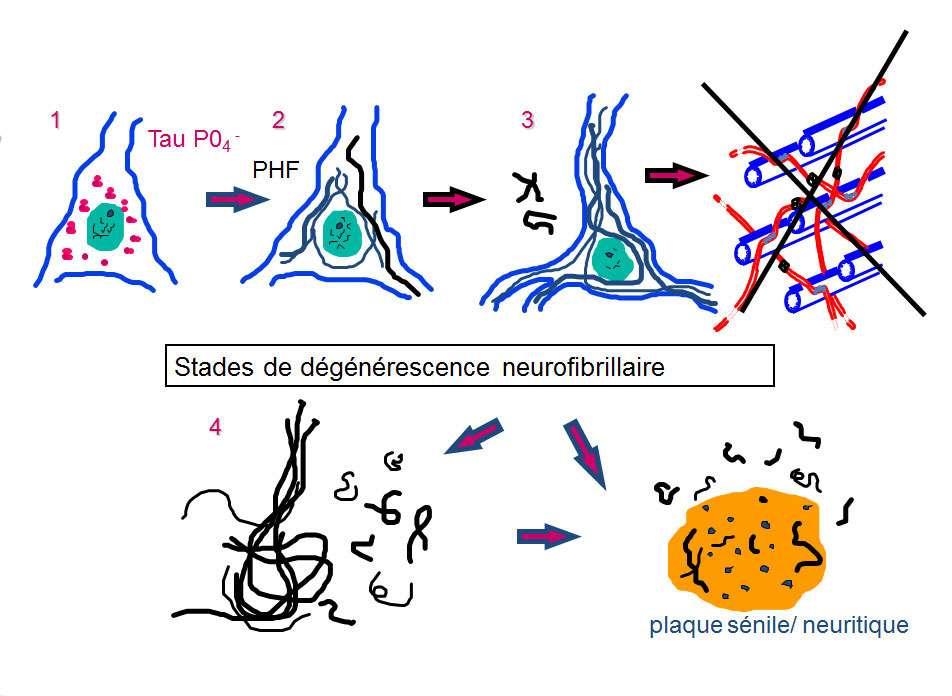 La dégénérescence neurofibrillaire affecte principalement les grands neurones pyramidaux de l'hippocampe. © DR
