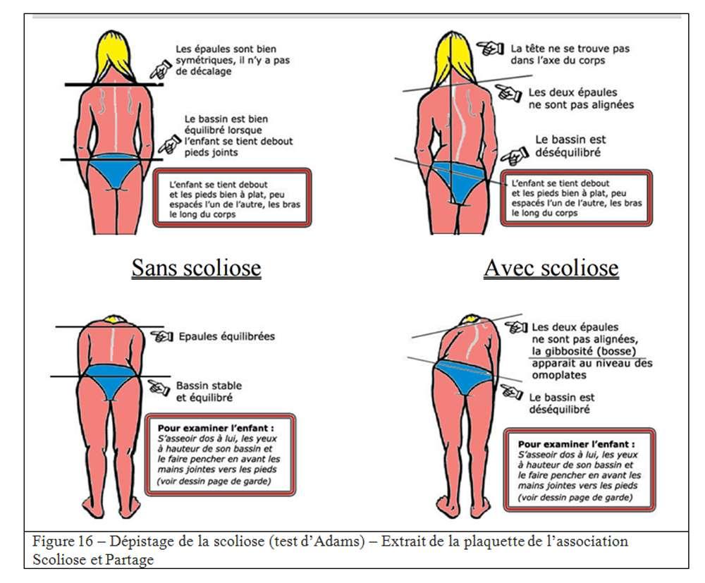 Le dépistage de la scoliose peut être réalisé grâce au test d'Adams. © Scoliose et Partage. Tous droits réservés/Reproduction interdite