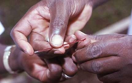 Photo : 17 - Remplissage d'un tube capillaire avec le sang collecté à l'extrémité d'un doigt et centrifugation du tube. Les parasites sont concentrés à l'interface plasma-globules et donc plus facilement décelables. © Gérard Duvallet