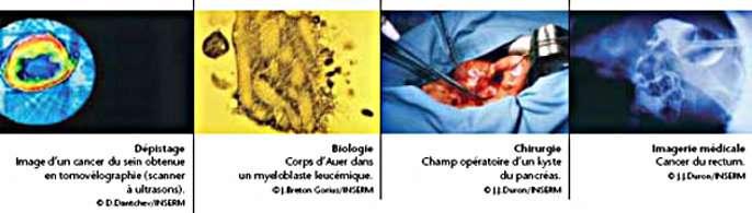 Les avancées scientifiques permettent la mise au point de techniques plus précises pour la chimiothérapie. © DR