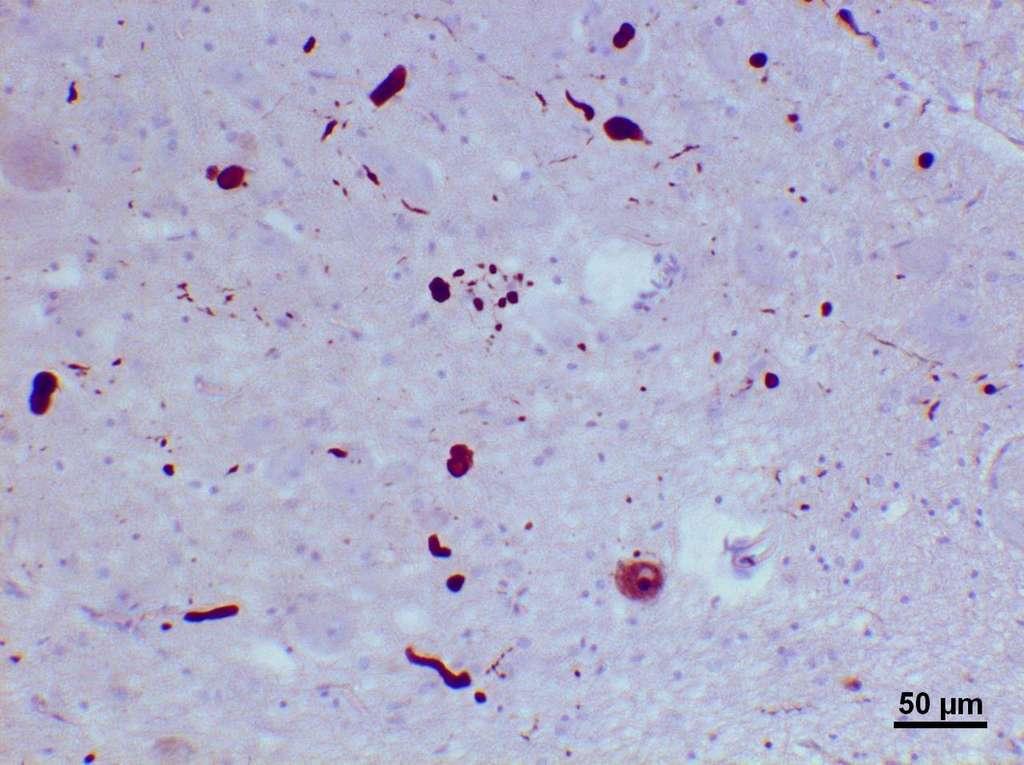 Les corps de Lewy, qui apparaissent à l'image, expriment une situation pathologique. On ne les retrouve qu'au niveau des neurones. © Dr. Andreas Becker, Wikipédia, cc by sa 3.0