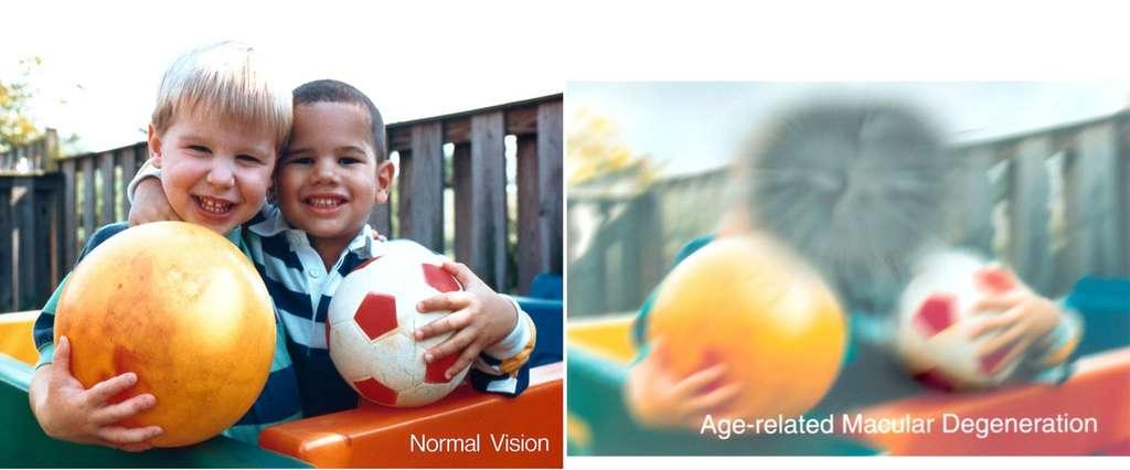 La dégénérescence maculaire liée à l'âge (DMLA) affecte grandement la vision. Le Centre national américain de l'œil propose la comparaison d'une même scène vue par une personne avec une vision normale (à gauche) et perçue par un patient atteint de DMLA (à droite). © National Eye Institute, DP