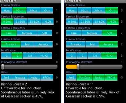Application de calcul du score de Bishop pour mobile (Android, SFR). Ce calcul est établi lors d'un déclenchement artificiel de l'accouchement par maturation cervicale. © DR