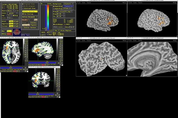 En obtenant de telles représentations du cerveau de leurs différents sujets, les chercheurs sont parvenus à créer une carte de l'intelligence grâce au lien qui existe entre lésion cérébrale et perte de faculté cognitive. © Aron Barbey
