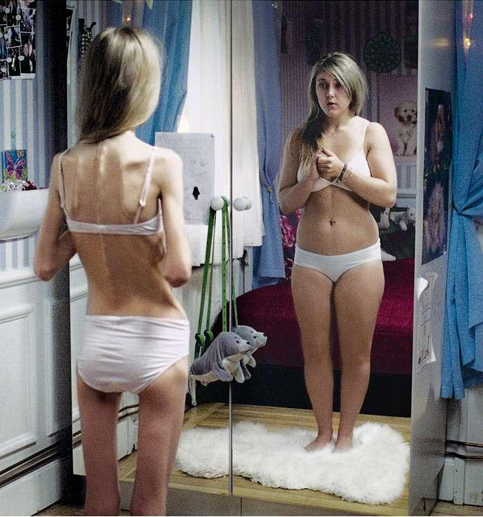 L'anorexie mentale est une maladie qui frappe souvent les femmes, à partir de l'adolescence. L'image que la patiente a d'elle-même est déformée, et ne reflète pas la réalité. © KairosOfTyre, Flickr, by nc sa 2.0