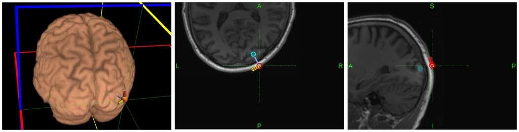 Localisation des stimulations sur le cerveau du receveur (à gauche). Les deux autres images montrent l'orientation du signal magnétique pour produire (en orange) ou ne pas produire (en rouge) l'illusion visuelle d'un phosphène. © 2014 Grau et al.