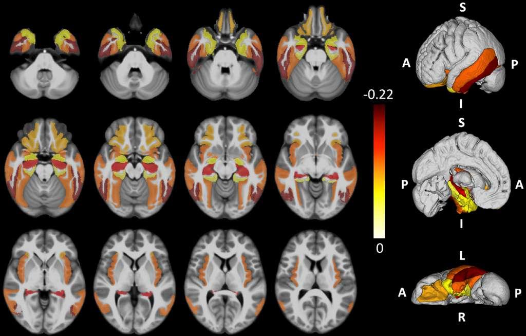 La démence de type Late s'étend d'abord aux amygdales, puis l'hippocampe et enfin, au gyrus frontal moyen. © © Peter T Nelson, Brain, 2019