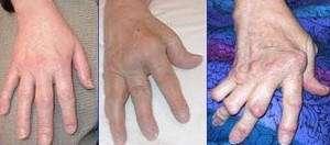 Conséquences de l'arthrite. © DR