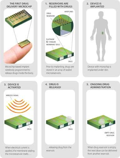Principe de l'implant contraceptif. La puce de 20 x 20 x 7 mm contient des microréservoirs emplis avec le produit actif, en l'occurrence du lévonorgestrel. Les ouvertures sont scellées par une membrane faite de titane et de platine qui réagit à une stimulation électrique pour libérer la substance selon le rythme préprogrammé. Le contrôle se fait par une liaison sans fil à l'aide d'une télécommande pour activer ou désactiver l'implant. © MicroChips