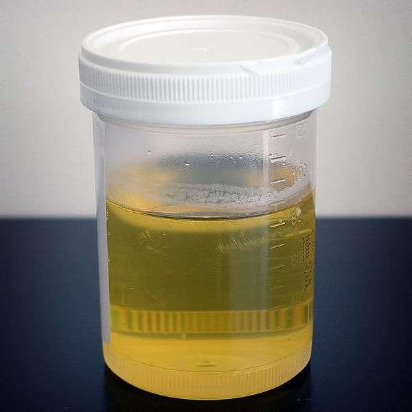 Les cellules présentes dans l'urine peuvent être utilisées pour fabriquer des dents. © Wikimedia Commons, DP
