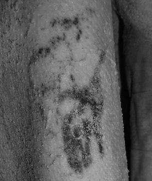 Tatouages identifiés sur le haut du bras du sujet masculin. Le dessin du haut représenterait un mouflon à manchettes et celui du dessous, un taureau sauvage. © British Museum