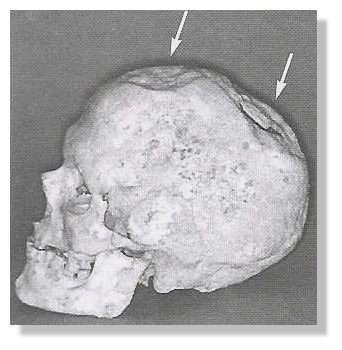 Évidence d'une intervention neurochirurgicale de l'époque préhistorique. Ce crâne humain date de plus de 7.000 ans. Il a fait l'objet d'une intervention du vivant du sujet. © Alt et al., 1997, Fig. 1a