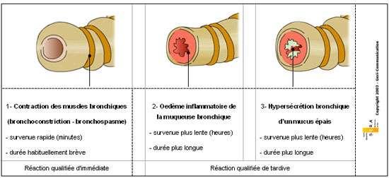 Figure 2 : Mécanisme de l'obstruction de la bronche dans la crise d'asthme Marchand, 2005.