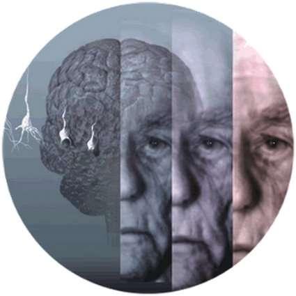 La maladie d'Alzheimer fait partie des maladies du cerveau, que l'on appelle maladies neurodégénératives. © DR
