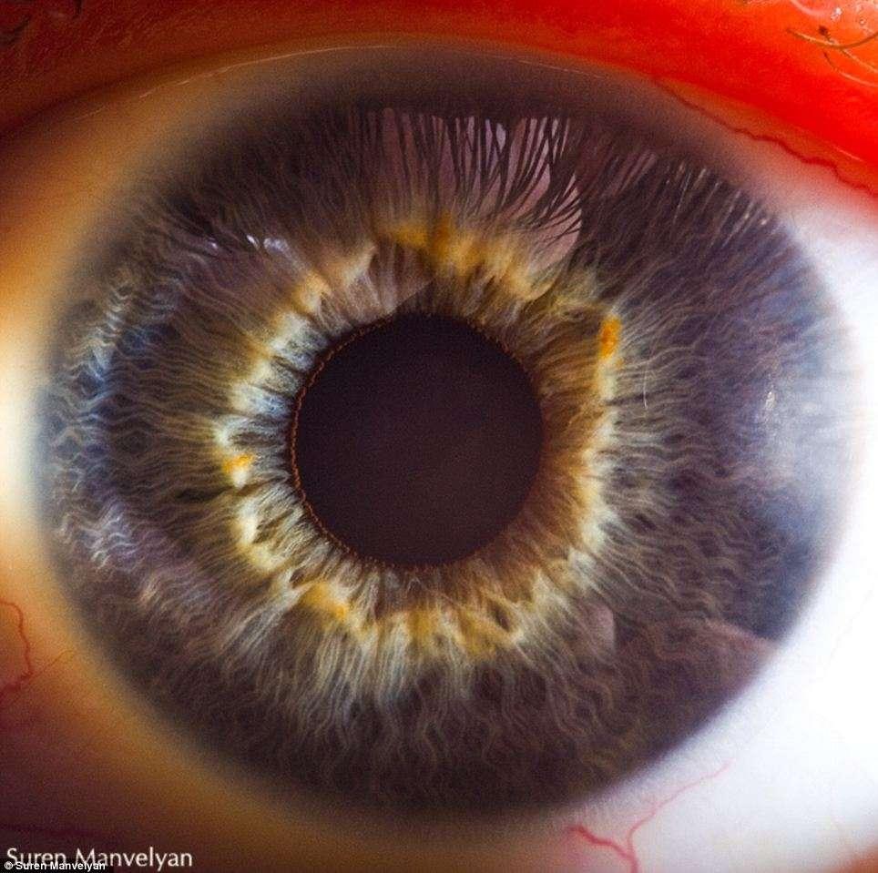 Les personnes aux yeux bleus possèdent peu de mélanine dans la partie antérieure de l'œil et sont plus sensibles au Soleil. © Suren Manvelyan