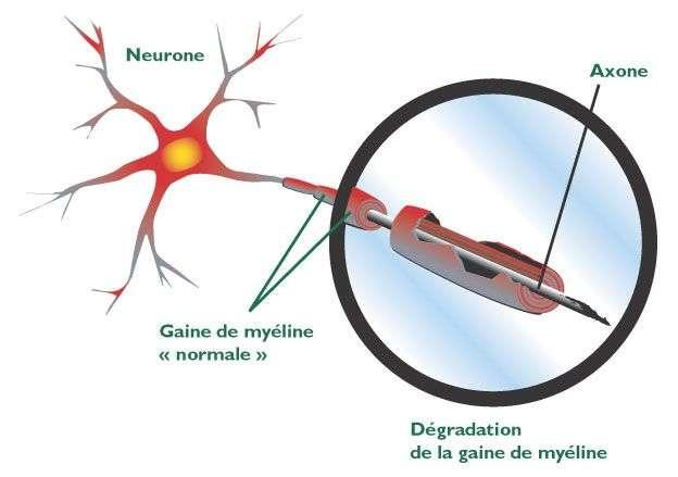 Chez les personnes souffrant de sclérose en plaques, la myéline entourant le nerf est détruite à certains endroits. L'influx nerveux est donc beaucoup moins bien transmis. © DR