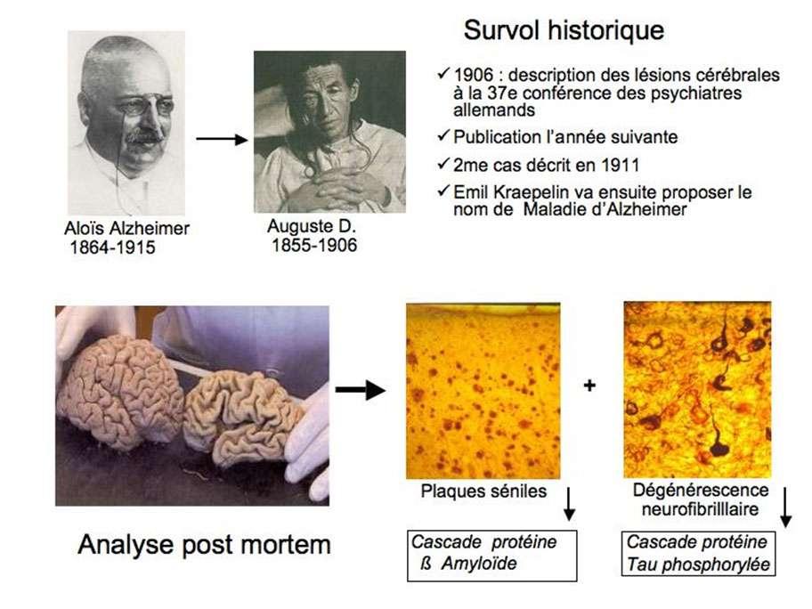 Aloïs Alzheimer a suivi la patiente Auguste Deter (sur la photo ci-dessus) jusqu'à sa mort en 1906. Il a décrit son cerveau à la 37e conférence des psychiatres allemands. © DR