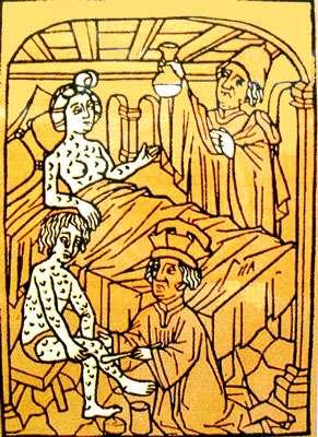 Gravure montrant un malade de la vérole.