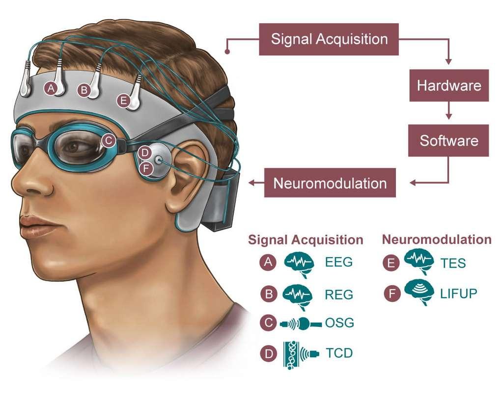 Une représentation de ce à quoi devrait ressembler le bonnet, avec ses quatre capteurs et deux stimulateurs. © NeuroEngineering Initiative, Rice University
