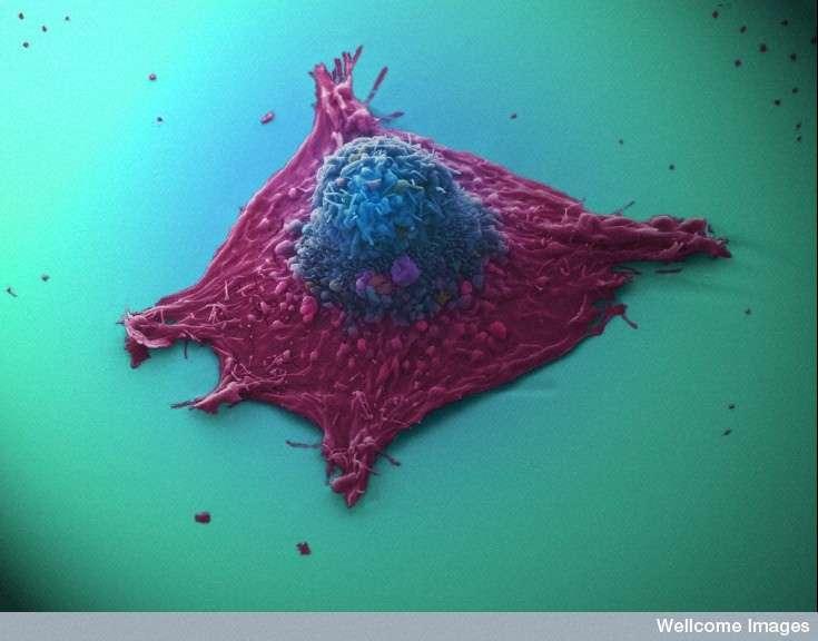 Les cellules cancéreuses peuvent échapper au système immunitaire et se développer. En augmentant l'activité du système immunitaire, il est cependant possible de mieux les combattre. © Anne Weston, Wellcome image, cc by nc nd 2.0