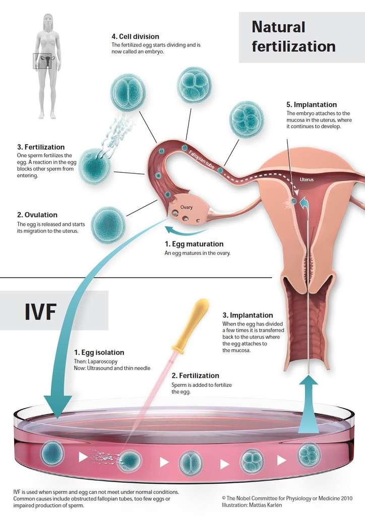 La voie de fécondation naturelle (partie du haut) comprend la maturation de l'ovocyte dans l'ovaire (1), l'ovulation (2), la fécondation par les spermatozoïdes dans la trompe de Fallope (3), la division cellulaire (4) et l'implantation de l'embryon dans l'utérus. La fécondation in vitro (partie du bas) consiste en la récupération de l'ovocyte maturé (1), la fécondation par les spermatozoïdes et finalement la réimplantation dans l'utérus de l'embryon (3) qui a commencé à se diviser. © The Nobel Committee for Physiology or Medicine 2010 / Illustration : Mattias Karlén