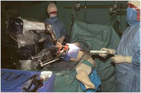 Le robot Caspar fraisant un fémur pour la pose d'une prothèse de hanche. © goetgheluck.com