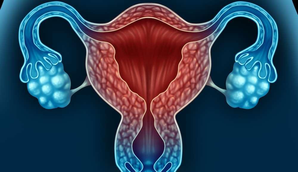 L'utérus est recouvert de l'endomètre, qui peut donner lieu à des fibromes. © freshidea, Fotolia