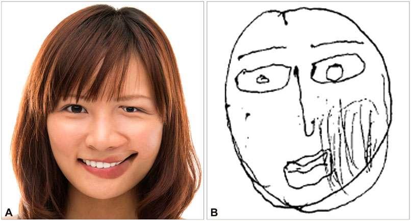 Reconstitution d'un visage d'après la description d'une patiente sud-coréenne de 52 ans. © Chang-Min Lee, Dement Neurocognitive Disord, 2015
