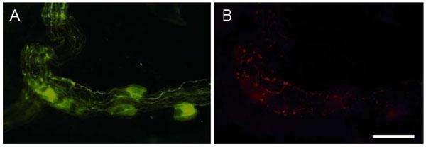 Immunomarquage du système nerveux entérique sur une biopsie du côlon. A : marquage des neurones (en vert). B : identification (en rouge) des inclusions pathologiques (neurites de Lewy). Échelle 30 µM. © Inserm
