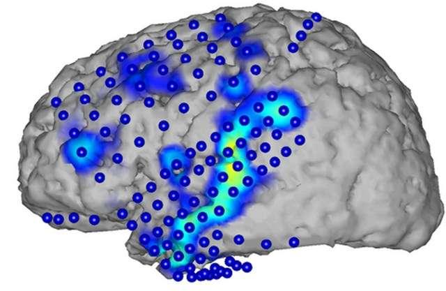 Cette image permet de suivre le procédé d'enregistrement des ondes cérébrales associées au langage et à la parole par électrocorticographie (ECoG). Les électrodes (cercles bleues) détectent l'activité cérébrale spécifique (zones bleues et jaunes) qui se produit à chaque mot. © CSL, KIT