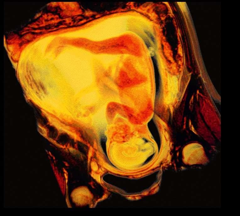 Le fœtus en IRM