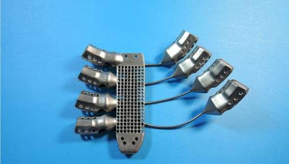 Le sternum et les côtes en titane insérés dans le corps du patient ont été imprimés en 3D. © Anatomics