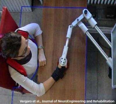 Le robot Braccio di Ferro assure la rééducation des hémiplégiques, victimes d'AVC. © Vergaro et al., Journal of NeuroEngineering and Rehabilitation