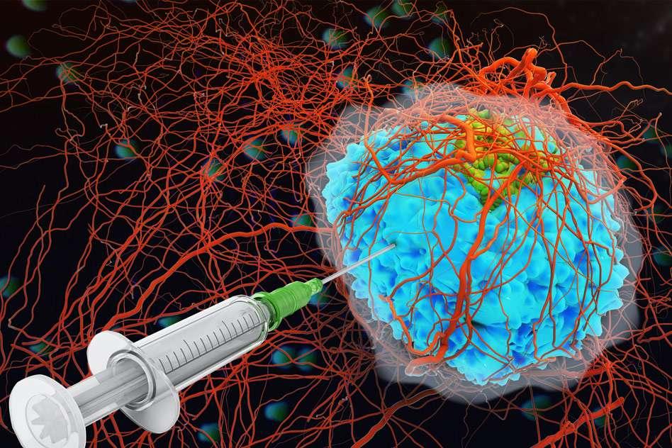 Les cytokines sont injectées directement dans la tumeur et le lumican les « ancre » au collagène des cellules cancéreuses. © MIT News